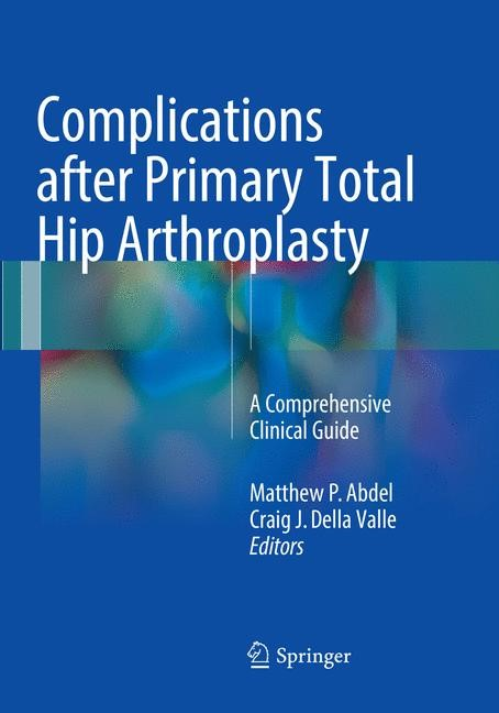 Abbildung von Abdel / Della Valle | Complications after Primary Total Hip Arthroplasty | Softcover reprint of the original 1st ed. 2017 | 2018