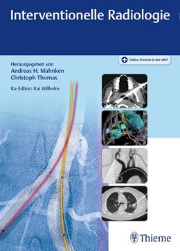 Abbildung von Mahnken / Thomas | Interventionelle Radiologie | 1. Auflage | 2019 | beck-shop.de