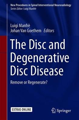 Abbildung von Manfrè / Van Goethem   The Disc and Degenerative Disc Disease   1st ed. 2021   2020   Remove or Regenerate?