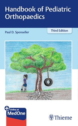 Abbildung von Sponseller | Handbook of Pediatric Orthopaedics | 3. Auflage | 2019 | beck-shop.de