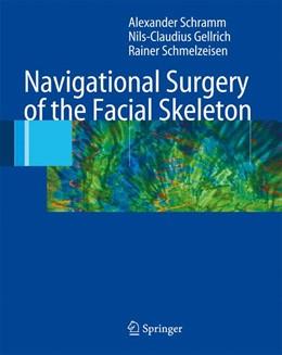 Abbildung von Schramm / Gellrich / Schmelzeisen | Navigational Surgery of the Facial Skeleton | 2006