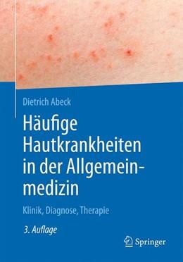 Abbildung von Abeck | Häufige Hautkrankheiten in der Allgemeinmedizin | 3. Auflage | 2020 | beck-shop.de