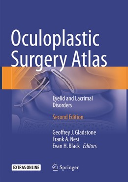 Abbildung von Gladstone / Nesi / Black | Oculoplastic Surgery Atlas | Softcover reprint of the original 2nd ed. 2018 | 2019 | Eyelid and Lacrimal Disorders