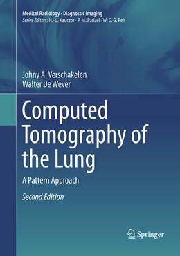Abbildung von Verschakelen / De Wever | Computed Tomography of the Lung | Softcover reprint of the original 2nd ed. 2018 | 2019 | A Pattern Approach