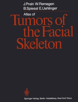 Abbildung von Prein / Remagen / Spiessl | Atlas of Tumors of the Facial Skeleton | Softcover reprint of the original 1st ed. 1986 | 1987 | Odontogenic and Nonodontogenic...