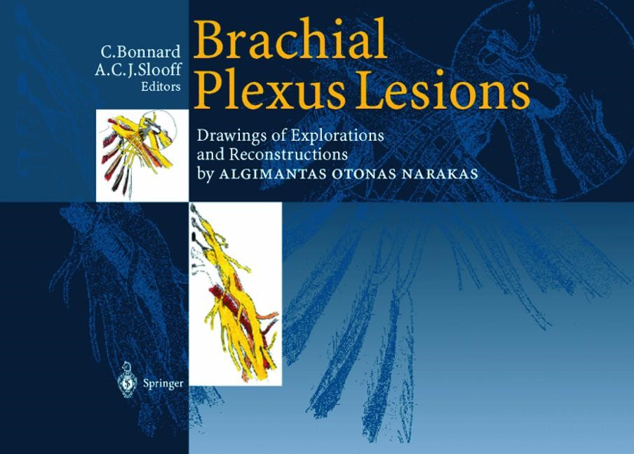 Brachial Plexus Lesions | Bonnard / Slooff | Softcover reprint of the original 1st ed. 1999, 1999 | Buch (Cover)