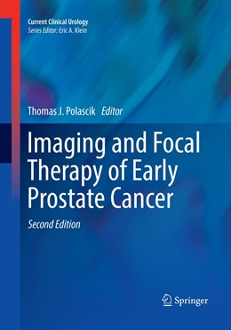 Abbildung von Polascik | Imaging and Focal Therapy of Early Prostate Cancer | Softcover reprint of the original 2nd ed. 2017 | 2018