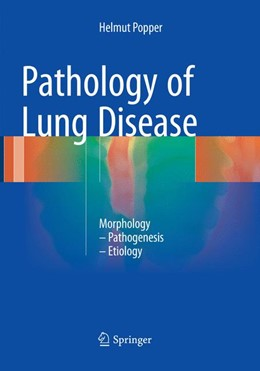 Abbildung von Popper | Pathology of Lung Disease | 1. Auflage | 2018 | beck-shop.de