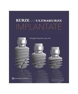 Abbildung von Deporter | Kurze und ultrakurze Implantate | 1. Auflage | 2019 | beck-shop.de