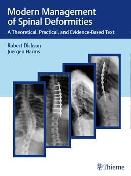Abbildung von Dickson / Harms | Modern Management of Spinal Deformities | 1. Auflage | 2017 | beck-shop.de
