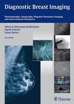 Abbildung von Heywang-Köbrunner / Schreer / Barter | Diagnostic Breast Imaging | Third edition | 2014 | Mammography, Sonography, MRI a...