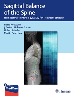 Abbildung von Roussouly / Pinheiro-Franco   Sagittal Balance of the Spine   1. Auflage   2019   beck-shop.de
