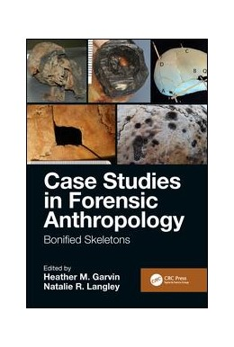 Abbildung von Garvin / Langley | Case Studies in Forensic Anthropology | 2019 | Bonified Skeletons