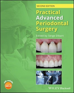 Abbildung von Dibart | Practical Advanced Periodontal Surgery | 2. Auflage | 2020 | beck-shop.de
