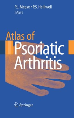 Abbildung von Mease / Helliwell | Atlas of Psoriatic Arthritis | 1st Edition. | 2007