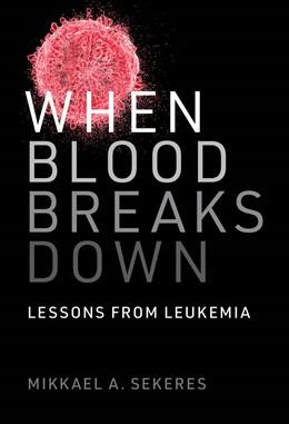 Abbildung von Sekeres   When Blood Breaks Down   1. Auflage   2020   beck-shop.de