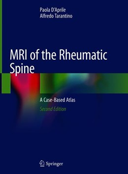 Abbildung von D'Aprile / Tarantino | MRI of the Rheumatic Spine | 2nd ed. 2020 | 2019 | A Case-Based Atlas