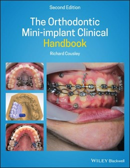 Abbildung von Cousley | The Orthodontic Mini-implant Clinical Handbook | 2nd Edition | 2020