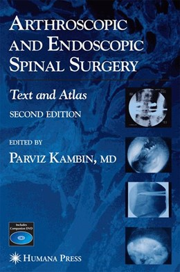 Abbildung von Kambin | Arthroscopic and Endoscopic Spinal Surgery | 2nd edition | 2005 | Text and Atlas