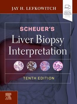 Abbildung von Lefkowitch | Scheuer's Liver Biopsy Interpretation | 2020