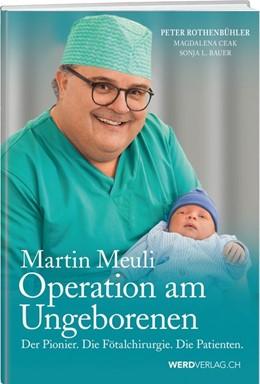 Abbildung von Rothenbühler / Bauer | Martin Meuli - Operation am Ungeborenen | 1. Auflage | 2020 | beck-shop.de