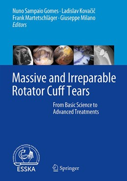 Abbildung von Sampaio Gomes / Kovacic / Martetschläger / Milano | Massive and Irreparable Rotator Cuff Tears | 1st ed. 2020 | 2020 | From Basic Science to Advanced...