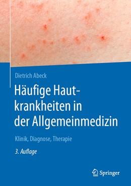 Abbildung von Abeck   Häufige Hautkrankheiten in der Allgemeinmedizin   3. Auflage   2020   beck-shop.de