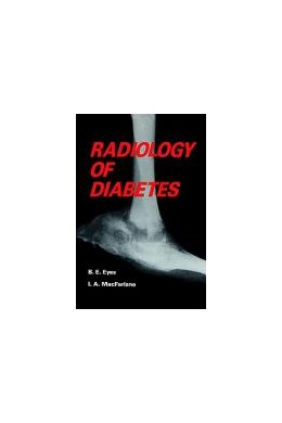 Abbildung von Eyes / MacFarlane | Radiology of Diabetes | 1986