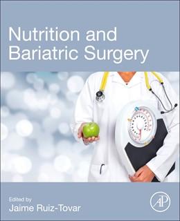 Abbildung von Ruiz-Tovar   Nutrition and Bariatric Surgery   1. Auflage   2021   beck-shop.de