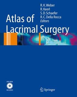Abbildung von Weber / Keerl / Schaefer / Rocca | Atlas of Lacrimal Surgery | 2006