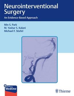 Abbildung von Park / Kalani | Neurointerventional Surgery | 1. Auflage | 2021 | beck-shop.de
