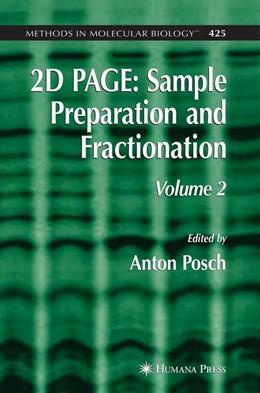 Abbildung von Posch | 2D PAGE: Sample Preparation and Fractionation | 2008
