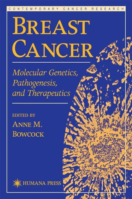 Breast Cancer | Bowcock, 1999 | Buch (Cover)