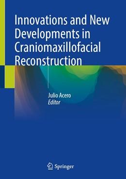 Abbildung von Acero | Innovations and New Developments in Craniomaxillofacial Reconstruction | 1. Auflage | 2021 | beck-shop.de