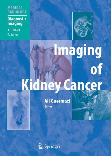 Abbildung von Guermazi | Imaging of Kidney Cancer | 2005