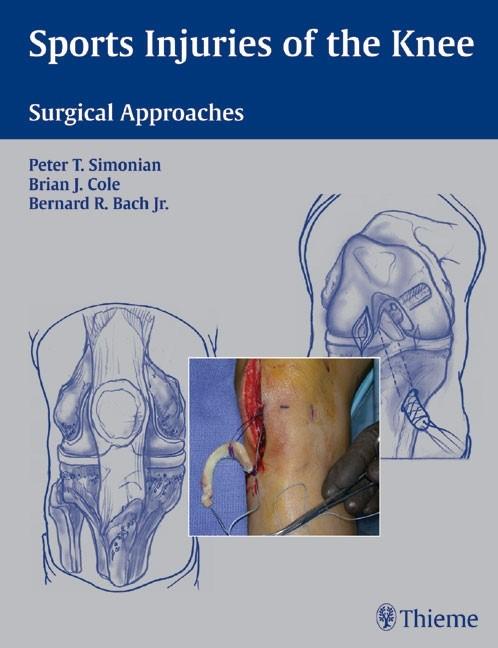 Abbildung von Simonian / Cole / Bach | Sports Injuries of the Knee | 2006