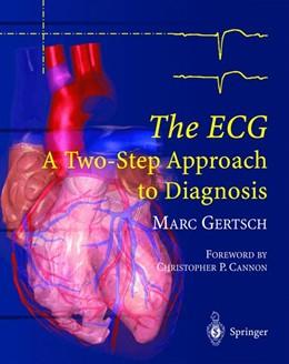 Abbildung von Gertsch | The ECG | 2003 | A Two-Step Approach to Diagnos...