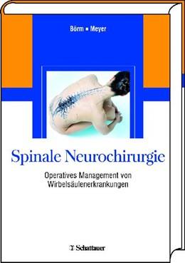 Abbildung von Börm / Meyer | Spinale Neurochirurgie | 1. Ndr. 2009 der 1. Aufl. | 2008 | Operatives Management von Wirb...