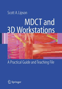 Abbildung von Lipson | MDCT and 3D Workstations | 2005 | A Practical How-To Guide and T...