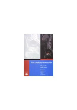 Abbildung von Adamietz / Noldus / Feyer / Böttcher   Prostatakarzinomrezidiv   2007   Alles, was Sie wissen müssen