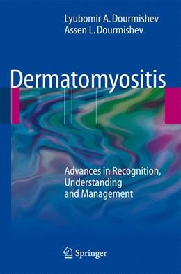 Abbildung von Dourmishev | Dermatomyositis | 2009 | Advances in Recognition, Under...