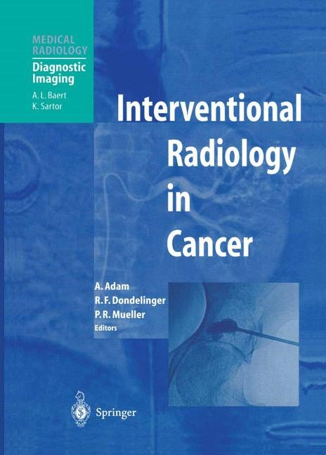 Interventional Radiology in Cancer | Adam / Dondelinger / Mueller, 2003 | Buch (Cover)
