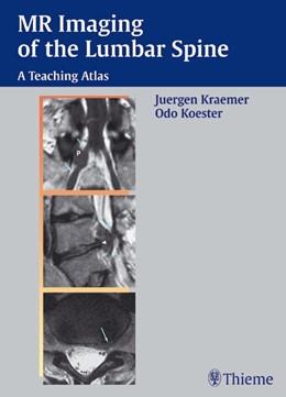 Abbildung von Kraemer / Krämer / Koester | MR-Imaging of the Lumbar Spine | 2002 | A Teaching Atlas
