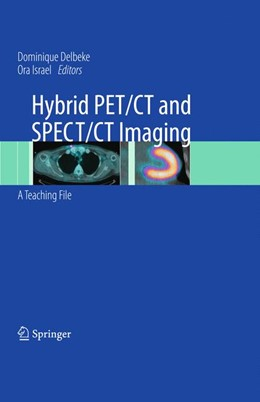 Abbildung von Delbeke / Israel | Hybrid PET/CT and SPECT/CT Imaging | 2009 | A Teaching File