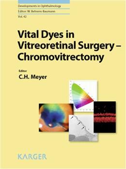 Abbildung von Meyer | Vital Dyes in Vitreoretinal Surgery | 2008 | Chromovitrectomy. | 42