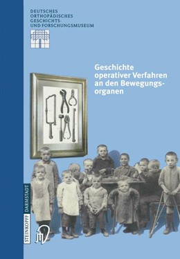 Abbildung von Zichner / Rauschmann / Thomann | Geschichte operativer Verfahren an den Bewegungsorganen | 2000