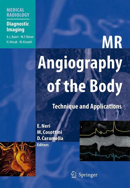 Abbildung von Neri / Cosottini / Caramella   MR Angiography of the Body   2009