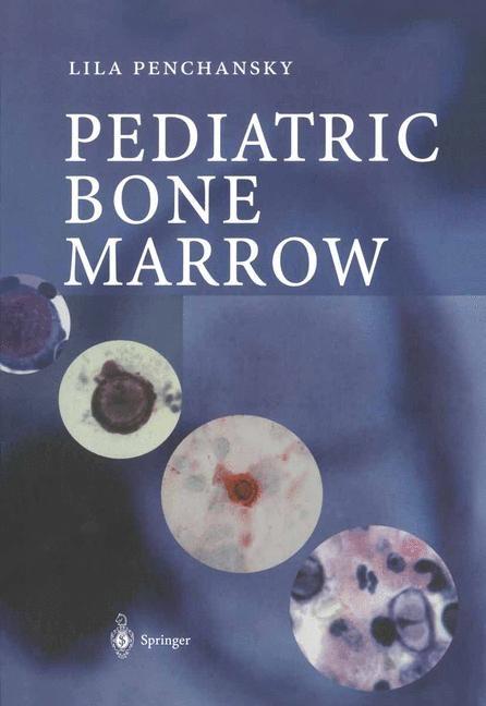 Abbildung von Penchansky   Pediatric Bone Marrow   2003
