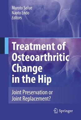 Abbildung von Sofue / Endo | Treatment of Osteoarthritic Change in the Hip | 2007 | Joint Preservation or Joint Re...