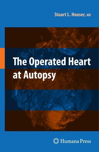 Abbildung von Houser | The Operated Heart at Autopsy | 2009